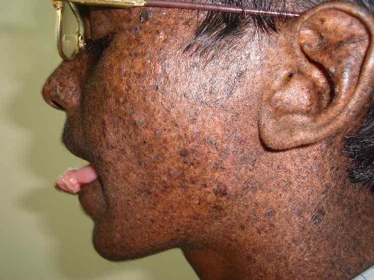 Xeroderma-Pigmentosum6